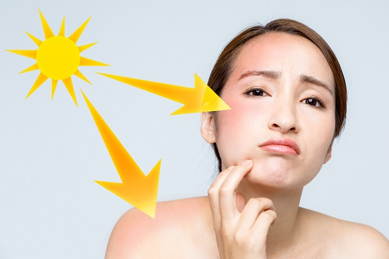 manchas de pele de verão como evitar