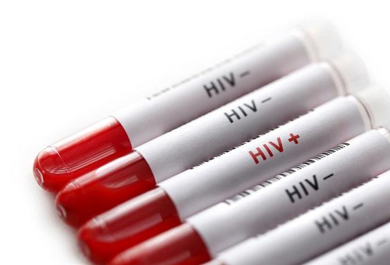 mitos e verdades sobre aids