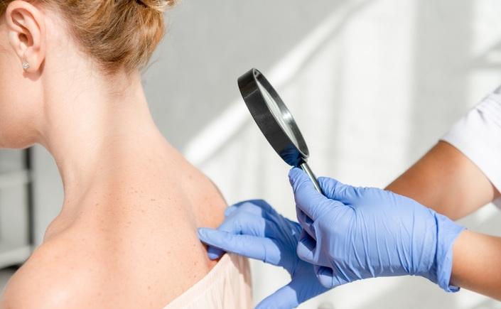 doenças dermatológicas sinais